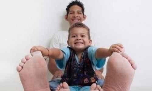 世界上脚最长最大的人_WWW.171ZZ.NET